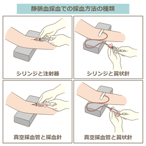 静脈血採血での採血方法の種類のイラスト