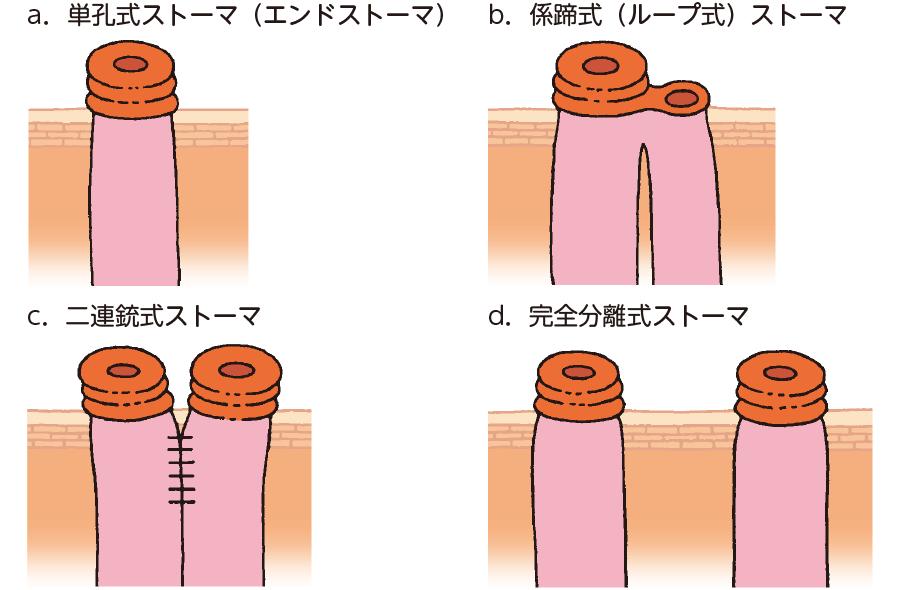 ストーマの造設法による分類