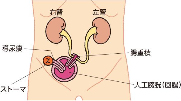 自己導尿型代用膀胱(コックパウチ)