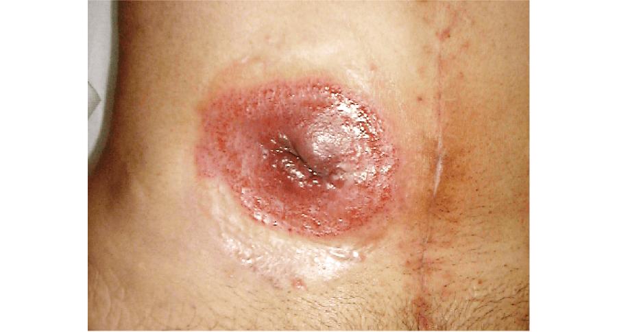 尿管皮膚瘻周囲の接触皮膚炎