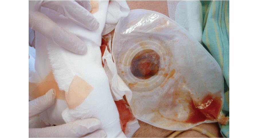 淡血性の排液