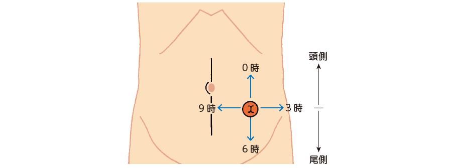 ストーマとストーマ周囲皮膚の方向の表現