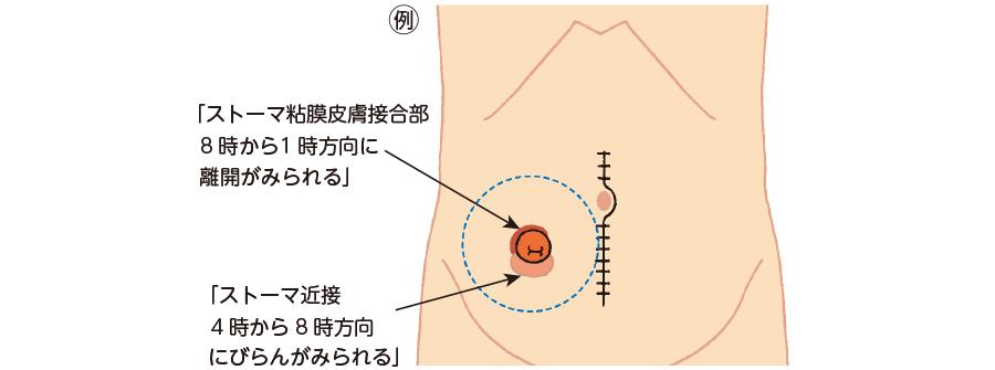 イラストを用いた方向の表現