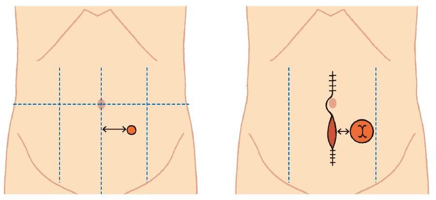 実際に造設されたストーマの位置を確認し,術前マーキングが適切であったか評価する