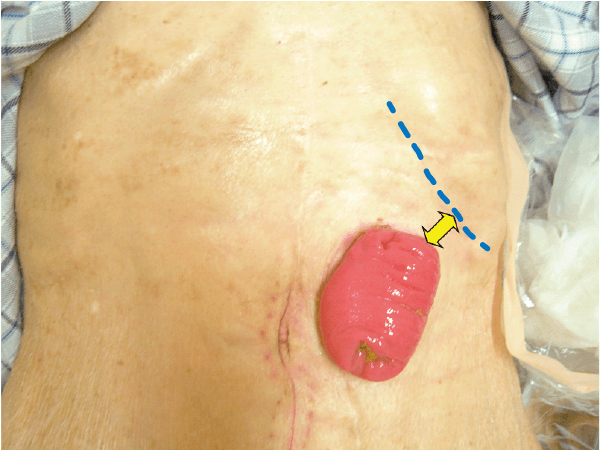 肋骨に近い横行結腸ストーマ