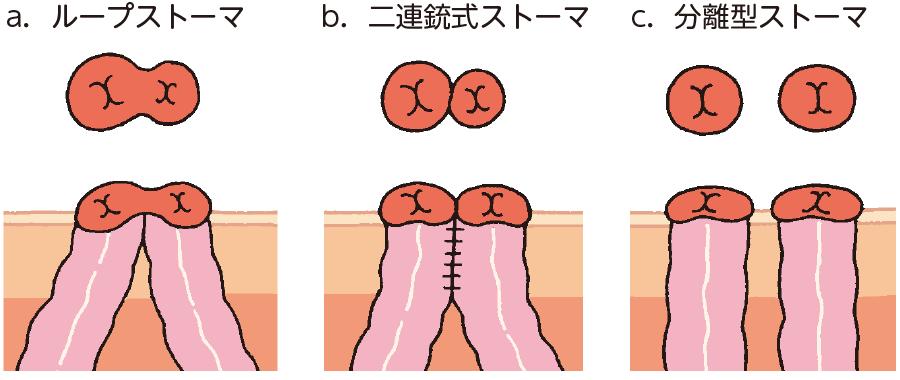 双孔式ストーマの種類