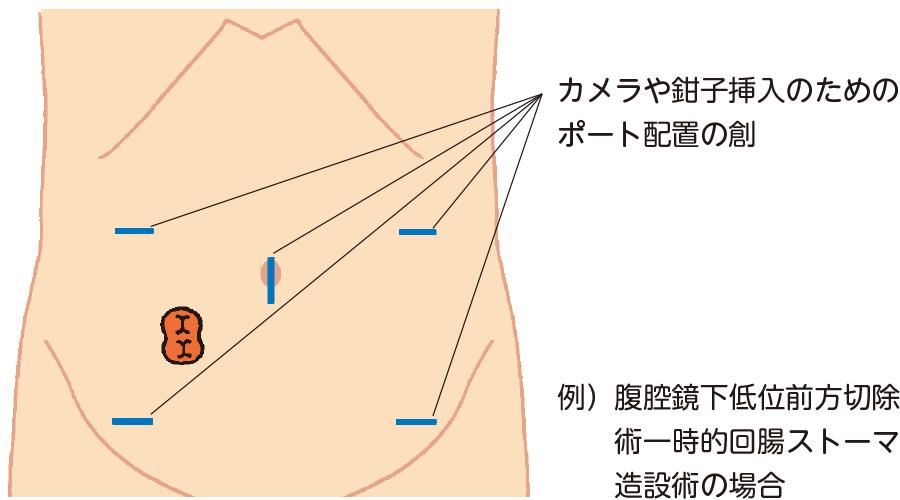 腹腔鏡下でのストーマ造設術のポート配置の例
