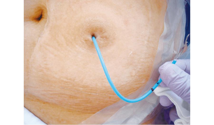 片側尿管皮膚瘻カテーテルタイプ
