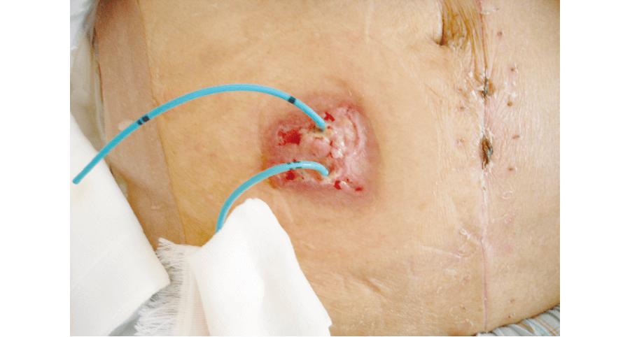 両側尿管皮膚瘻