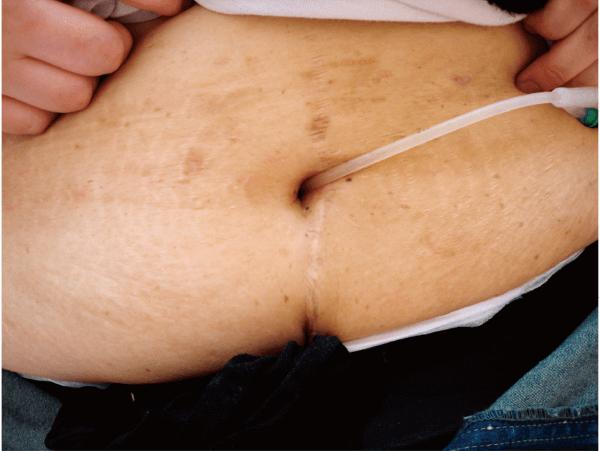 カテーテルが挿入されている臍の禁制型尿路ストーマ