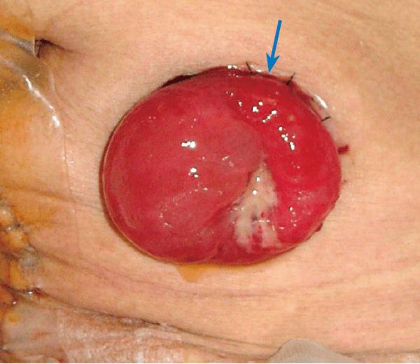 術直後のストーマ粘膜皮膚接合部