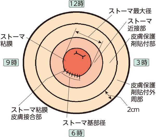 ストーマ各部の名称とストーマ周囲皮膚の区分