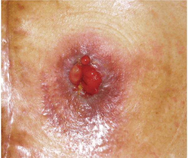壊死組織除去後,不整形なストーマ(術 後2 カ月・退院後)