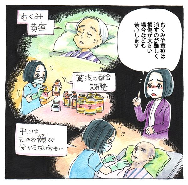 むくみや黄疸は消すのが難しく、損傷が大きい場合なども苦心すると語る赤澤さん。