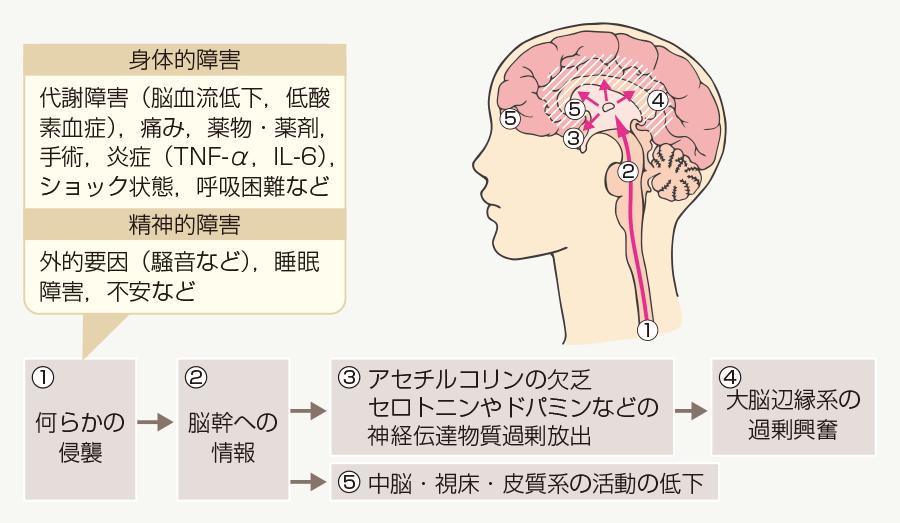 せん妄は急性の脳機能不全