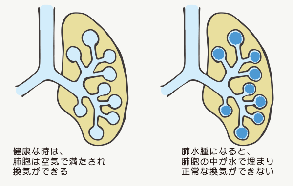 健康時と肺水腫時の比較簡略図