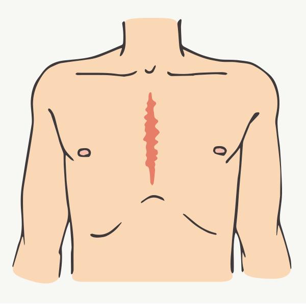 胸骨正中切開手術の切開創