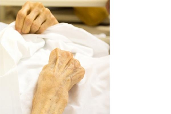 高齢者患者さんの手の写真