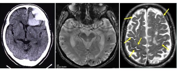 画像で見つかる脳アミロイドアンギオパチー(CAA)の例