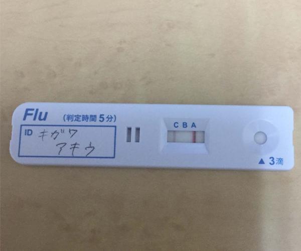 インフルエンザ検査キッド(インフルエンザA型反応)の写真