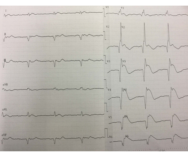 血糖値400mg/dL以上、肝胆道系酵素上昇、CK1000 U/L、CK-MB150 U/L、トロポニンT陽性の心電図