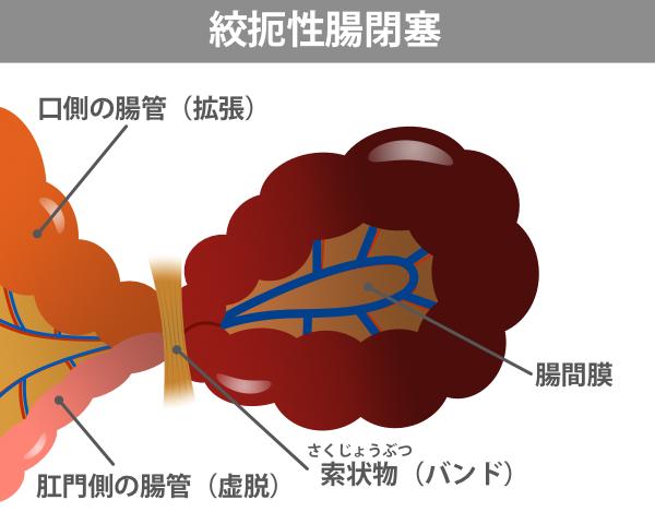 絞扼性腸閉塞の病態を示したイラスト