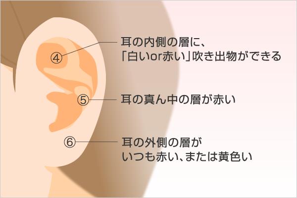 【耳の周り】でわかる腎の不調