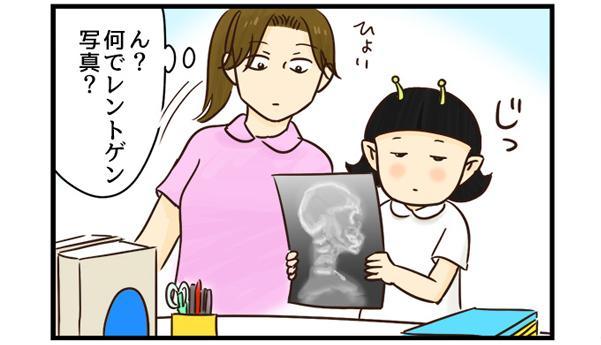レントゲン写真をじっと見つめている宇宙人看護師よし子