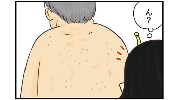 患者さんの背中を見て何かに気付いた