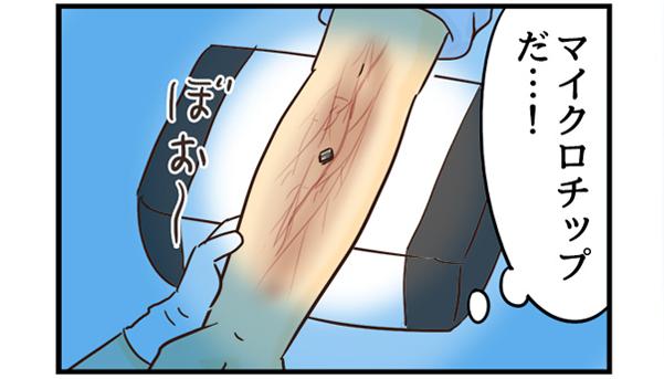 患者さんの腕を透視すると、マイクロチップが埋まっているのを発見。