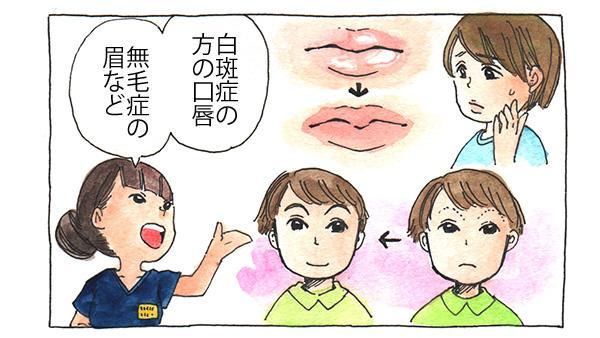 白斑症の方の口唇、無毛症の眉など