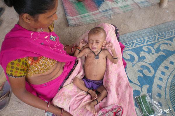 重度の栄養失調児