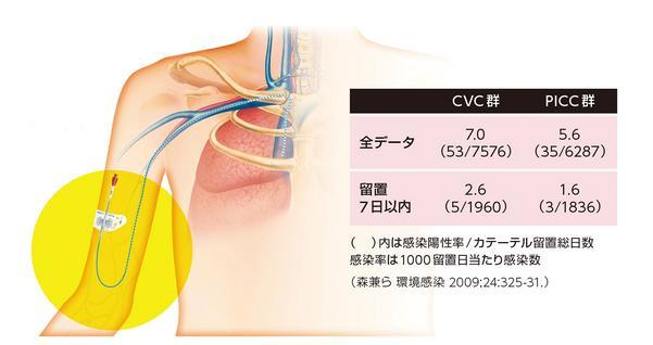 表  8施設におけるカテーテル由来血流感染率とPICC留置のイメージ(イラスト提供:メディコン)