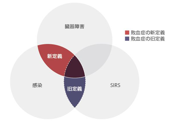 臓器障害、感染、全身炎症反応症候群(SIRS)と敗血症の定義の概念図