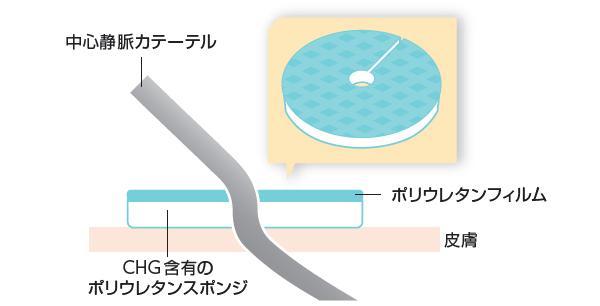 CHGスポンジ「バイオパッチ」使用のイメージ図(編集部による)