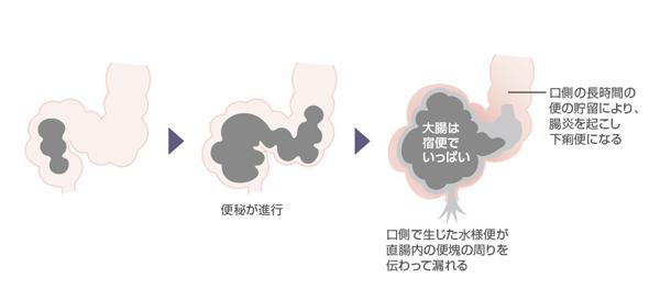図2 オピオイド使用中の癌患者における溢流性便秘