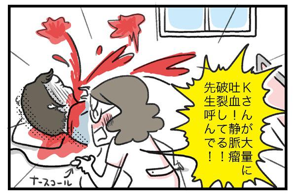 「Kさんが大量に吐血!静脈瘤破裂してる!!先生呼んで~!!」