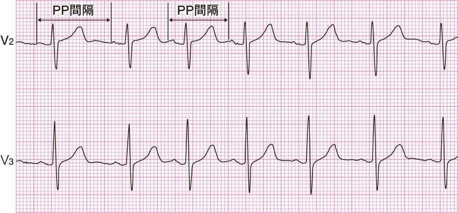 洞不整脈の心電図