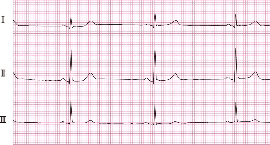 洞性徐脈の心電図