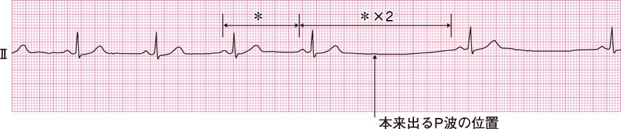 洞房ブロックの心電図
