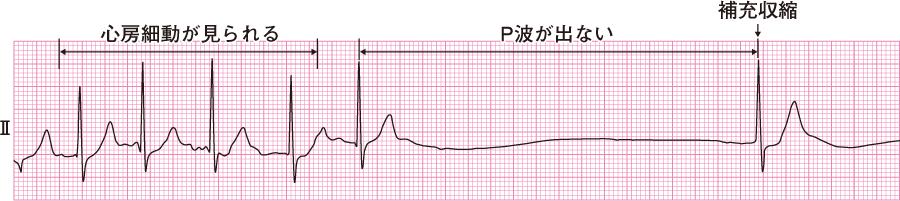徐脈頻脈症候群の心電図