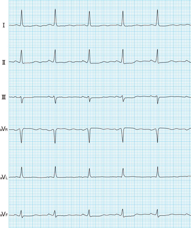 正常心電図の波形