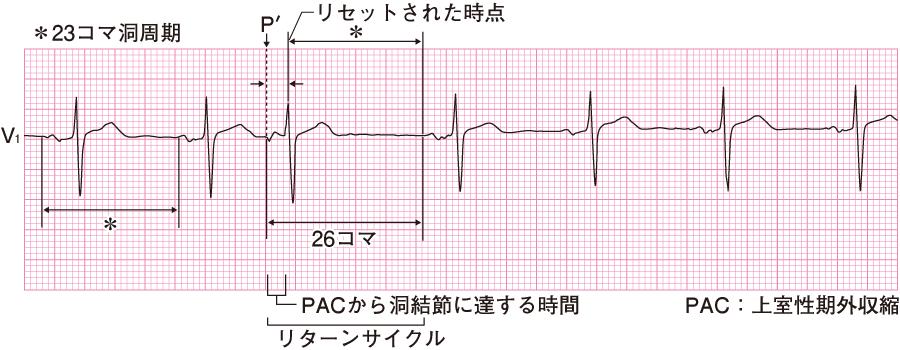 上室性期外収縮の心電図②