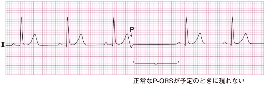 上室性期外収縮の心電図③(非伝導性)