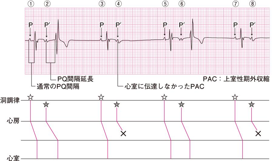 上室性期外収縮の心電図④(P'Q間隔延長)