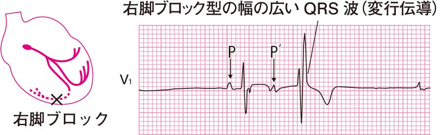 上室性期外収縮の心電図⑤(変行伝導)