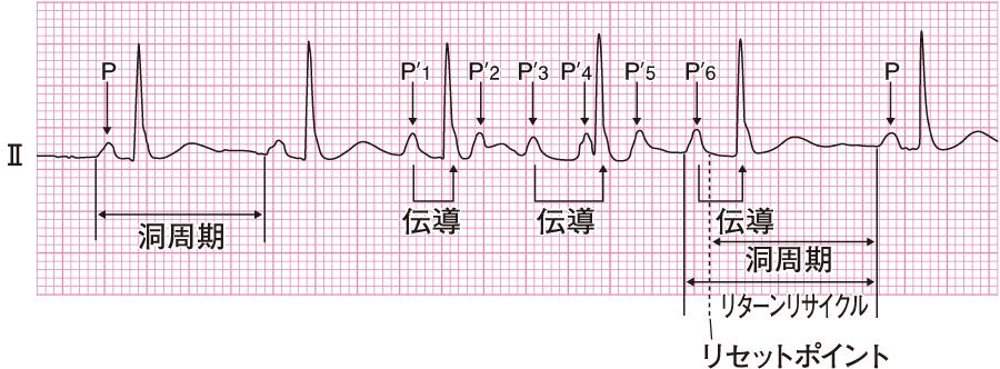 上室性期外収縮の心電図⑥(ショートラン)