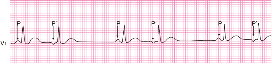 上室性期外収縮の心電図⑦(2段脈)