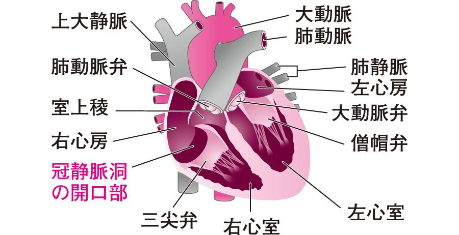 冠静脈洞の開口部の位置