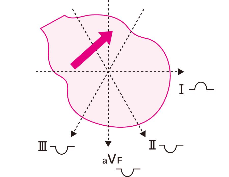 冠静脈同調律でのP波の向き